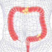 Confira o artigo do Dr. Luis Gustavo Capochin para a Revista Saúde sobre a campanha de prevenção ao câncer intestinal